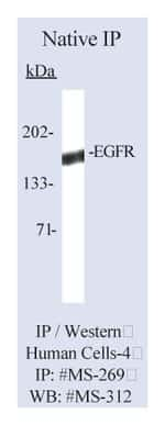 Lab Vision™ Epidermal Growth Factor Receptor/EGFR Ab-2, Mouse Monoclonal Antibody