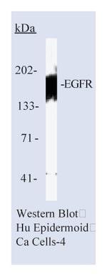 Lab Vision™ Epidermal Growth Factor Receptor/EGFR Ab-5, Mouse Monoclonal Antibody