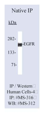 Lab Vision™ Epidermal Growth Factor Receptor/EGFR Ab-5, Mouse Monoclonal Antibody