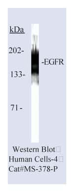 Lab Vision™ Epidermal Growth Factor Receptor/EGFR Ab-10, Mouse Monoclonal Antibody