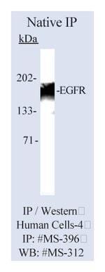 Lab Vision™ Epidermal Growth Factor Receptor/EGFR Ab-11, Mouse Monoclonal Antibody