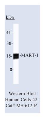 MART-1/Melan-A (Melanoma Marker) Ab-1, Mouse Monoclonal Antibody