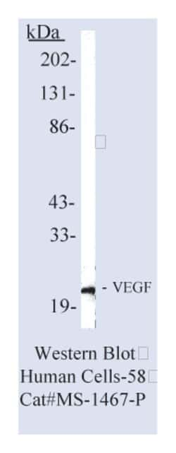 Vascular Endothelial Growth Factor (VEGF) Ab-7, Mouse Monoclonal Antibody