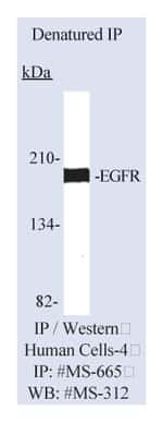 Lab Vision™ Epidermal Growth Factor Receptor/EGFR Ab-15, Mouse Monoclonal Antibody