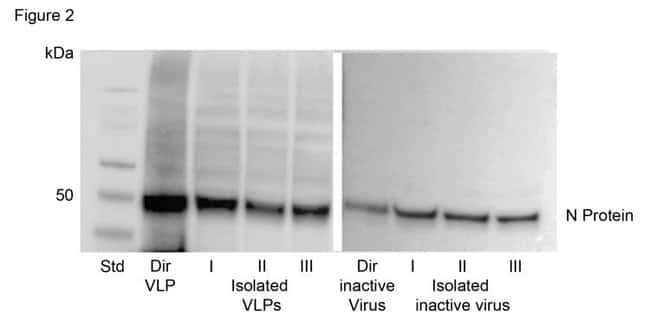 Automated isolation of SARS-CoV-2 VLPs and inactivated virus