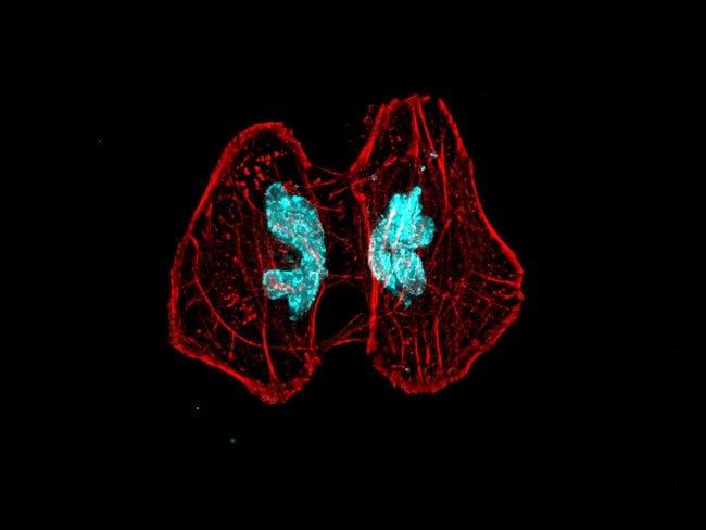 2D deconvolution image of HeLa cells labeled with Alexa Fluor Plus 555 Phalloidin