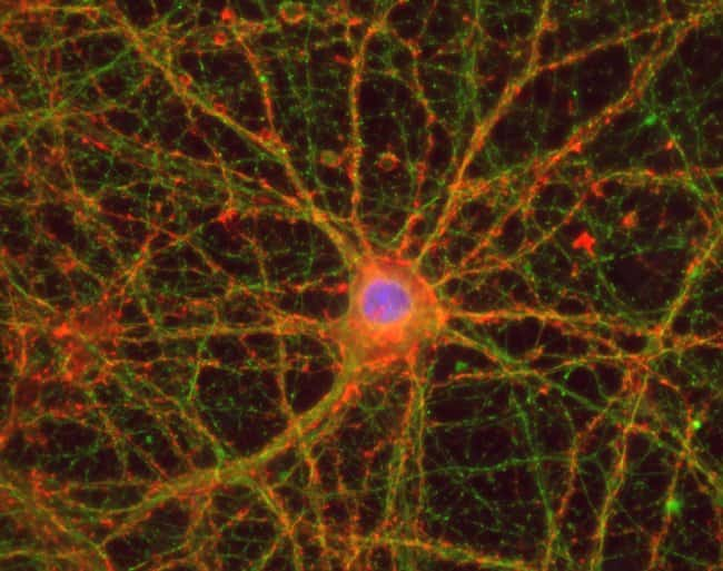 Mouse cortical neurons mounted in Prolong Glass and imaged with EVOS FL Auto 2