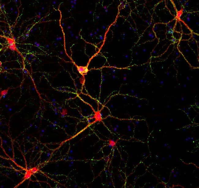 Primary rat cortical neurons seeded on Poly-D-Lysine
