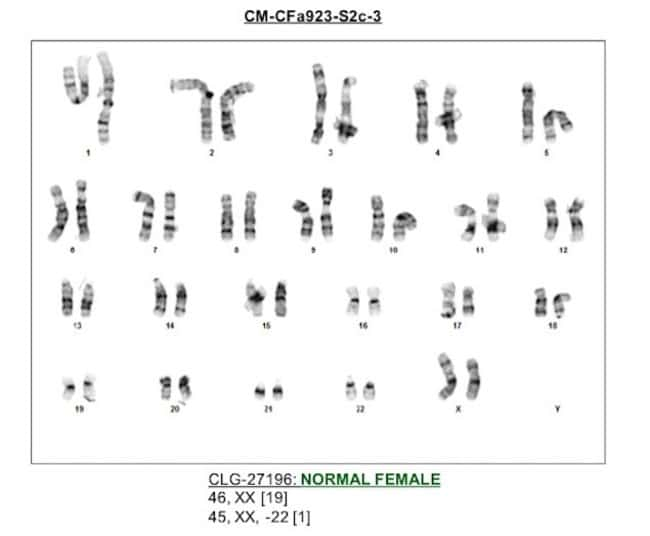 CTS CytoTune clones are karyotypically normal