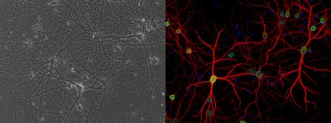 Primary rat cortical neurons cultured on Poly-D-Lysine
