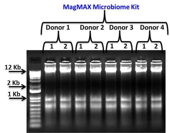 Qualitative assessment of total nucleic acid from 4 donors