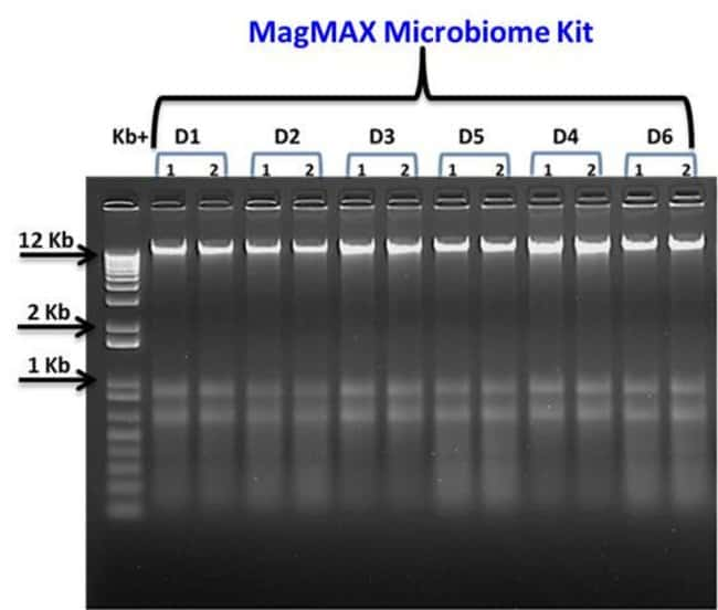 Qualitative assessment of total nucleic acid from 6 donors