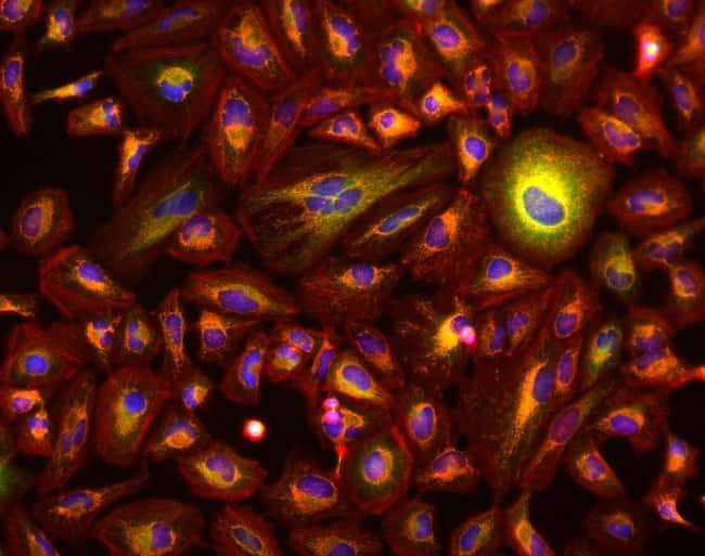 20X fluorescence image of HeLa cells with EVOS M7000 microscope