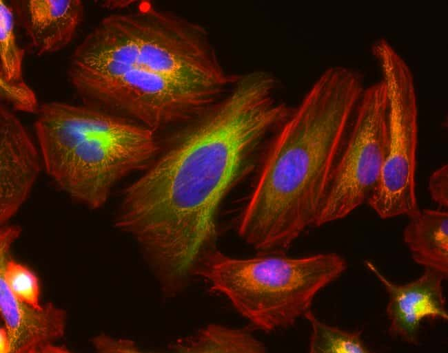 40X fluorescence image of HeLa cells with EVOS M7000 microscope