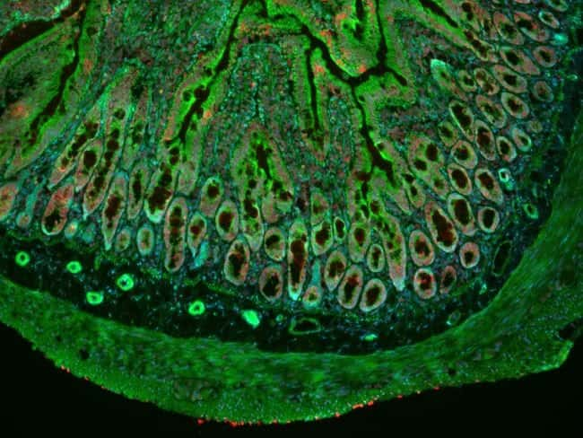 CellMask Green Actin Tracking Stain labeling in IHC protocol