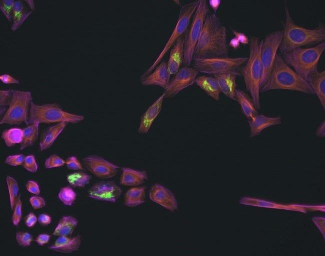 HeLa cells mounted with SlowFade Glass mountant