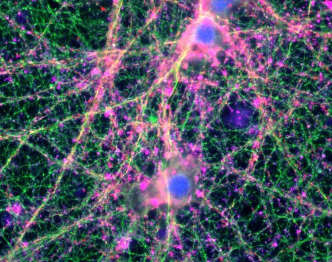 Mouse cortical neurons mounted in Prolong Glass and imaged with EVOS FL Auto 2.0