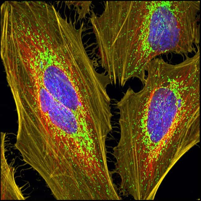 HeLa cells mounted with Prolong Glass and imaged with confocal microscope
