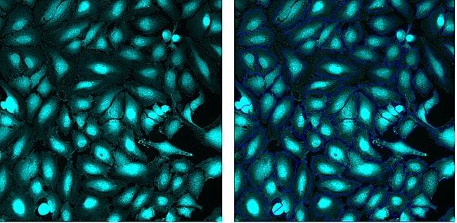 HeLa cells pre- and post-segmentation