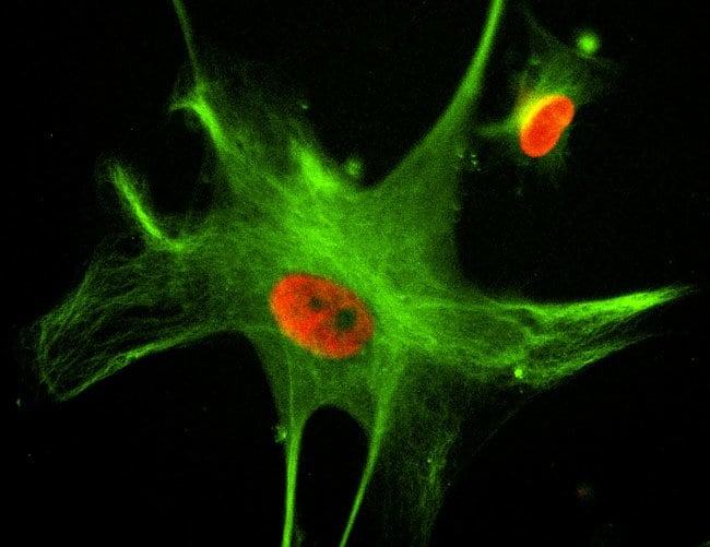 Multiplex image live HASM cells