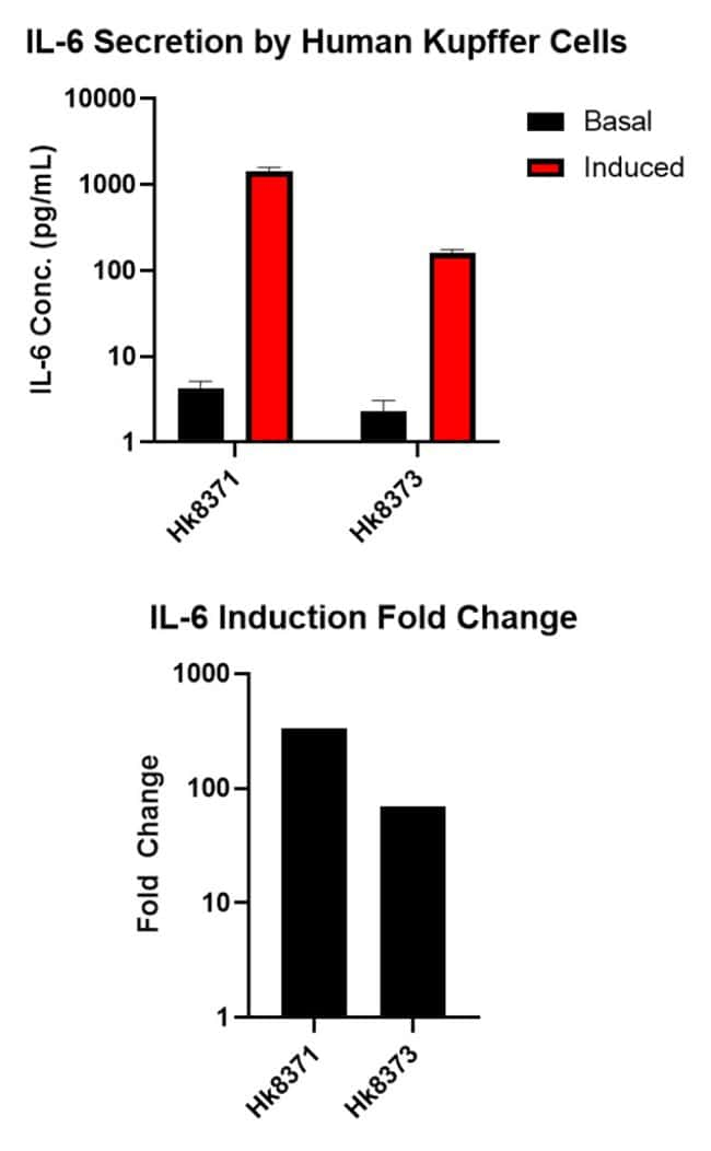 IL-6 Induction in Human Kupffer Cells