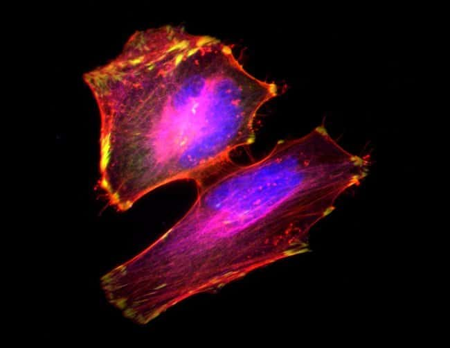 HeLa cells labeled with Alexa Fluor Plus 555 Phalloidin