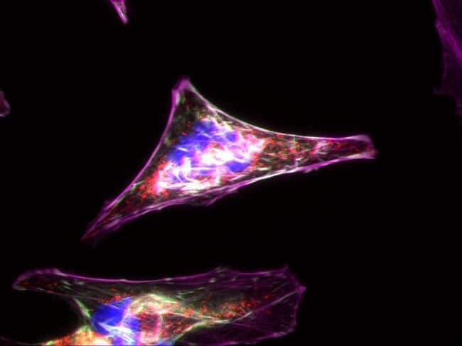 HeLa cells labeled with Alexa Fluor Plus 647 Phalloidin