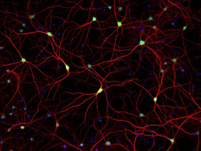 HuC/D and MAP2 staining of primary rat cortex neurons