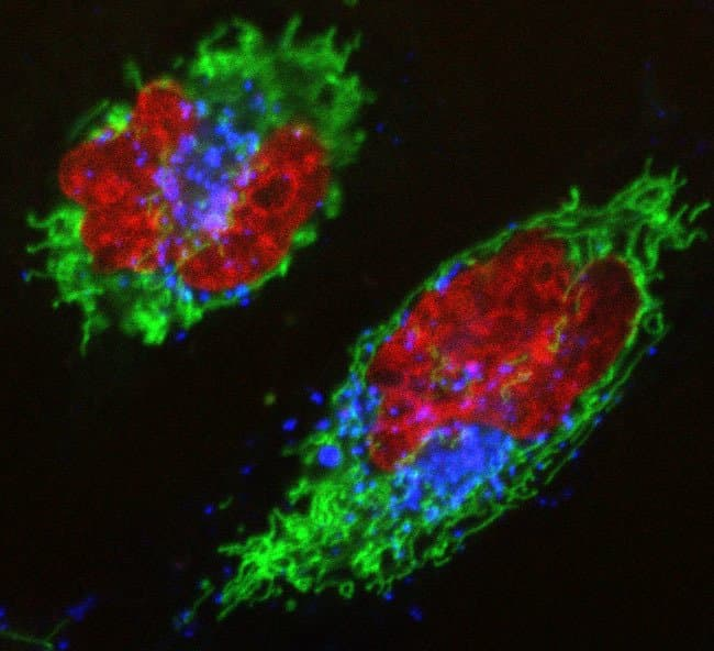 Multiplex image of  live HeLa cells