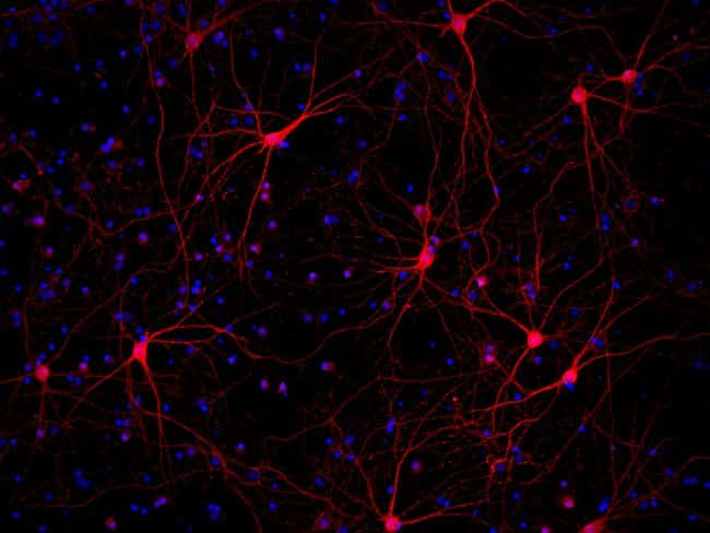 Parvalbumin-stained primary rat cortex neurons
