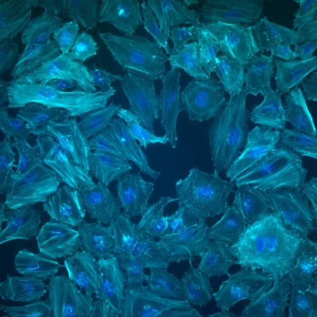 HeLa cells labeled with Alexa Fluor Plus 750 Phalloidin