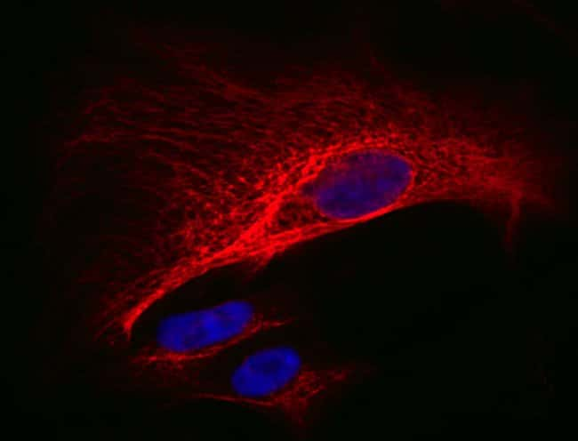 Cytokeratin 18 (red) in A549 cells was fluorescently labeled using an anti-cytokeratin 18 primary antibody and DyLight 594-Conjugated Anti-Rabbit Secondary Antibody. Thermo Scientific Pierce Hoechst s