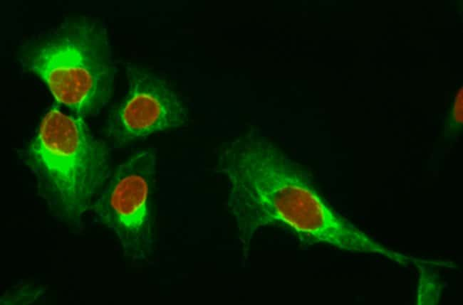 Immunofluorescence microscopy using DyLight 550 dye