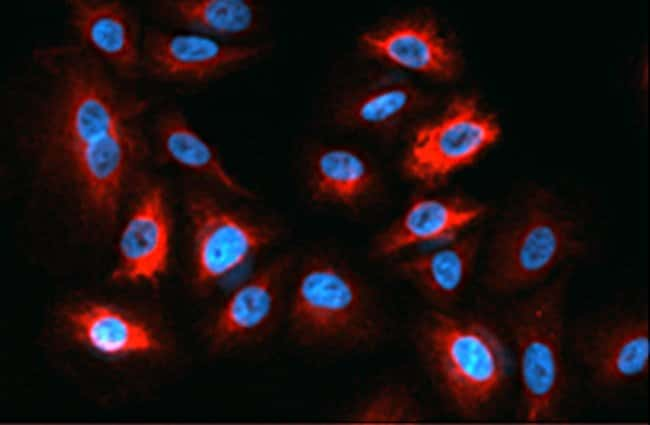 Immunofluorescence microscopy using DyLight 650 dye