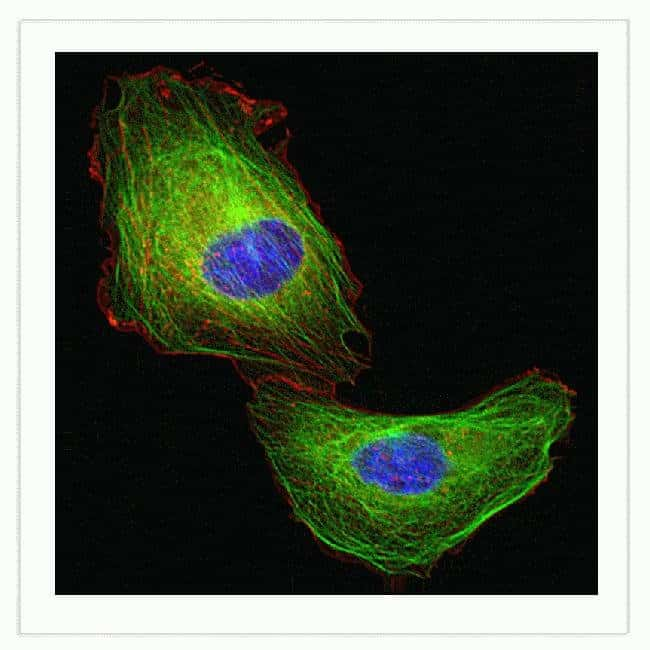 U-2 OS cells were transduced with Cellular Lights™ Actin-RFP (Cat. No. C10127) and Cellular Lights™ MAP4-GFP (Cat. No. C10105) and imaged the next day. Cells were washed in HBSS (Gibco cat no 14025) a