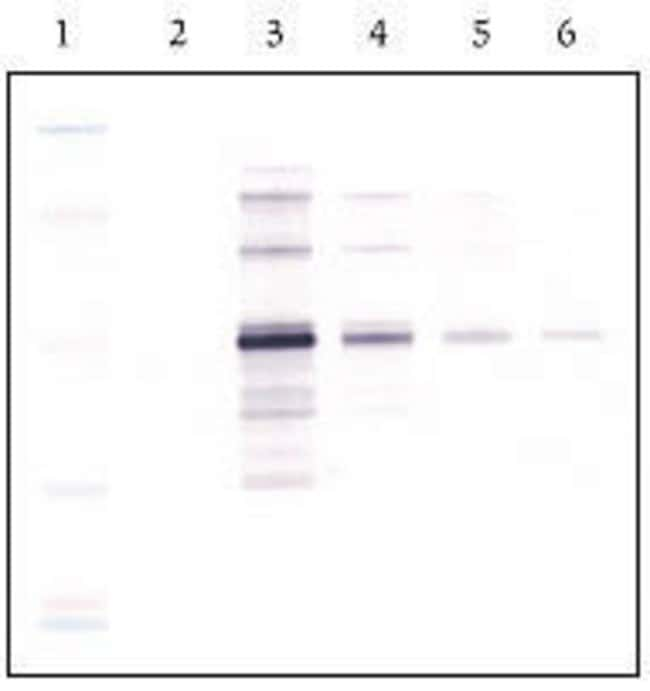 Blot developed with WesternBreeze® Chromogenic Kit (anti-rabbit)