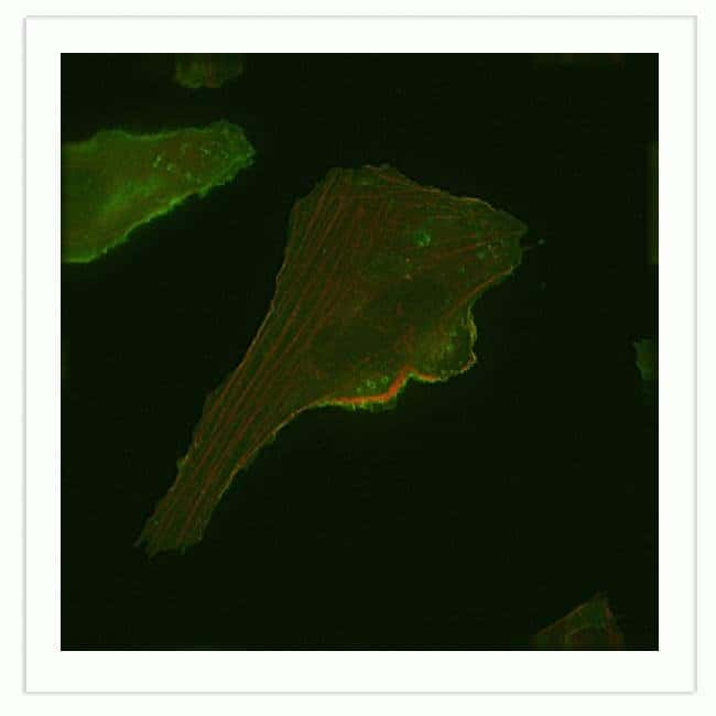 U-2 OS cells were transduced with Cellular Lights™ Actin-RFP and Organelle Lights™ Plasma Membrane-GFP and imaged the next day. Cells were imaged in McCoys media.