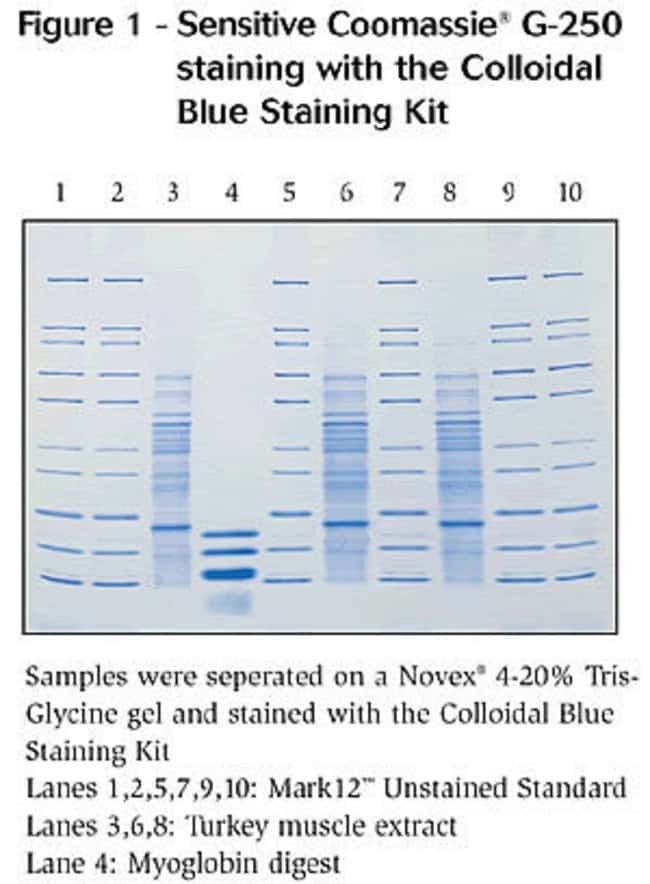 Sensitive staining with the Colloidal Blue Staining Kit.