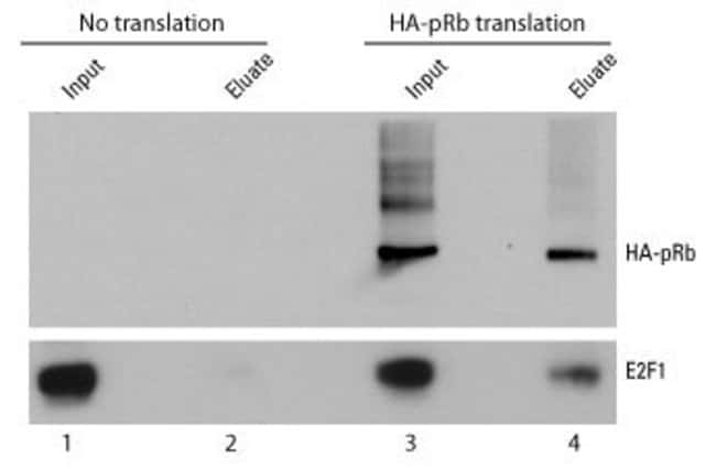 HA-tagged pRb was expressed using a Pierce Human <em>in vitro</em> Expression System. 50µL of the translation reaction was diluted to 200µL in TBS and added to 15µL of agarose resin and