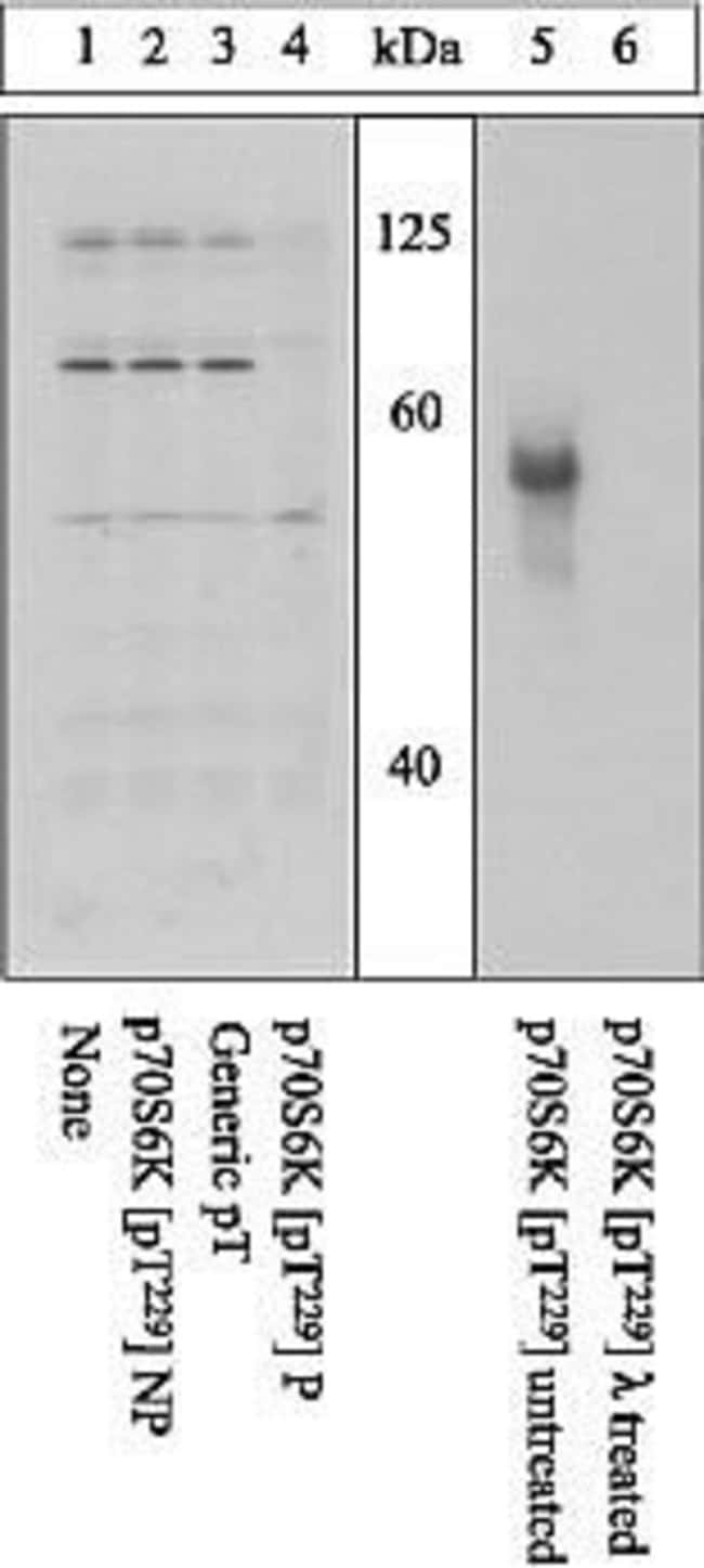 Peptide Competition and Phosphatase Stripping: Extracts prepared from Hek293 cells (1-4) or activated p70 S6 kinase protein (5, 6) wereresolved on a 10% polyacrylamide gel and transferred to PVDF. Membranes were either untreated (1-5), or treated with lam