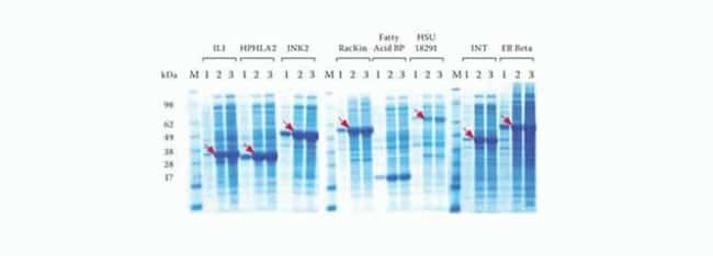 Higher protein yields achieved with the MagicMedia™ <i>E. coli</i> Expression Medium