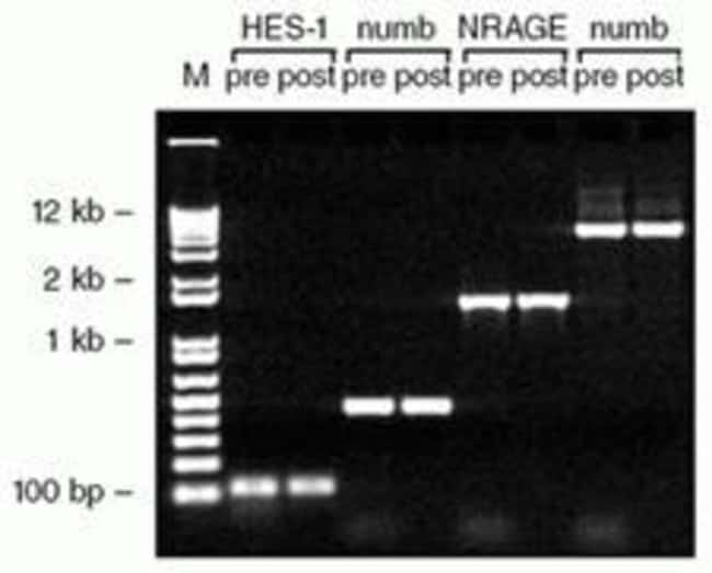 Fig. 2, ExoSAP-IT treatment of PCR products with no sample loss.