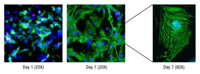 Cardiomyocyte differentiation after cell isolation