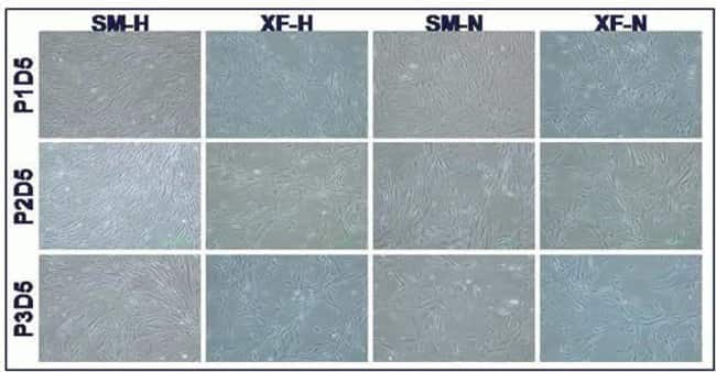 MSCs retain fibroblast, spindle-like morphology in FBS & XF media