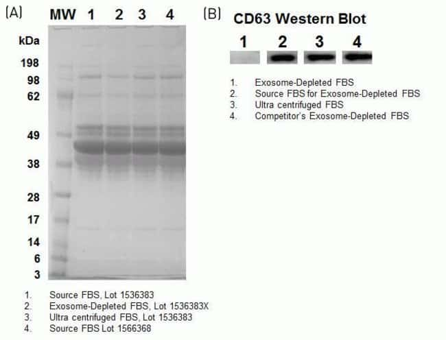 Analysis of FBS by SDS-PAGE and CD63 content by western blot