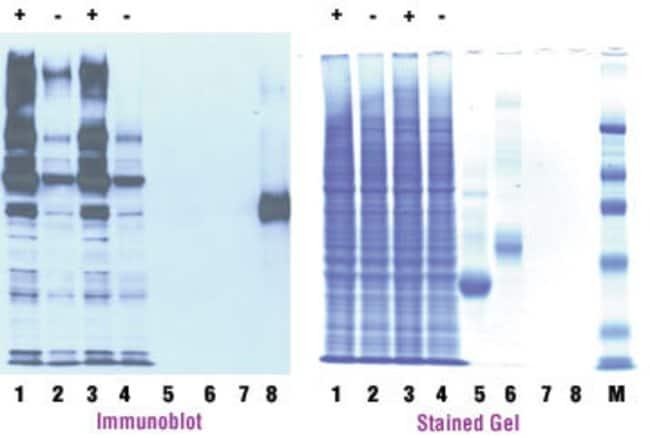 <em>O</em>-GlcNAc Western Detection Kit analysis of <em>O</em>-GlcNAc-modified proteins after SDS-PAGE