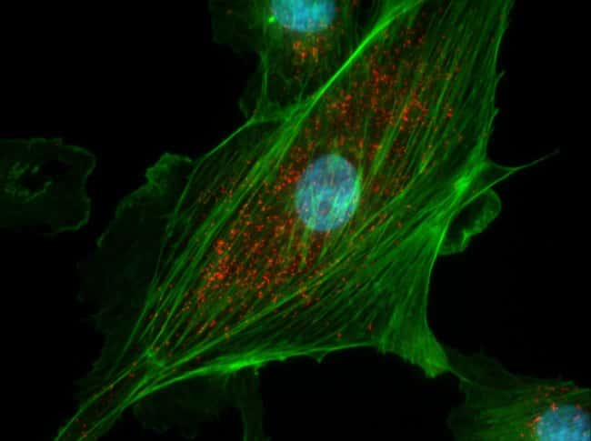 CAKI cells were plated on coverslips overnigh. The next day cells were fixed and permeabilized using the Image-iT® Fixation/Permeabilization Kit (R37602) according to protocol. Peroxisomes were la