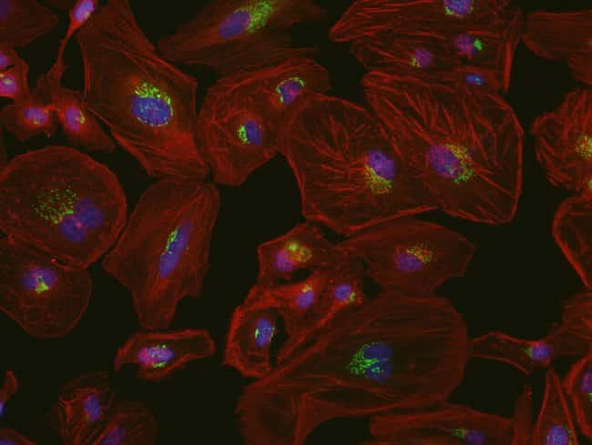 HeLa cells were transduced with CellLight® Nucleus-GFP (C10602), grown over night. Following fixation, permeabilization and block using the Image-iT Fixation/Permeabilization Kit (R37602), mMitoch