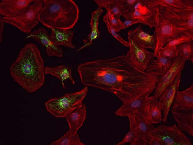 HeLa cells were transduced with CellLight® Mitochondria-GFP (C10600) and grown over night. Following fixation, permeabilization and block using the Image-iT Fixation/Permeabilization Kit (R37602),