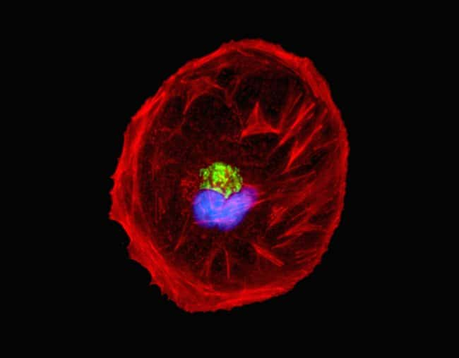 HeLa cells were transduced with CellLight® Nucleus-GFP (C10602), grown over night. Following fixation, permeabilization and block using the Image-iT Fixation/Permeabilization Kit (R37602), the cys